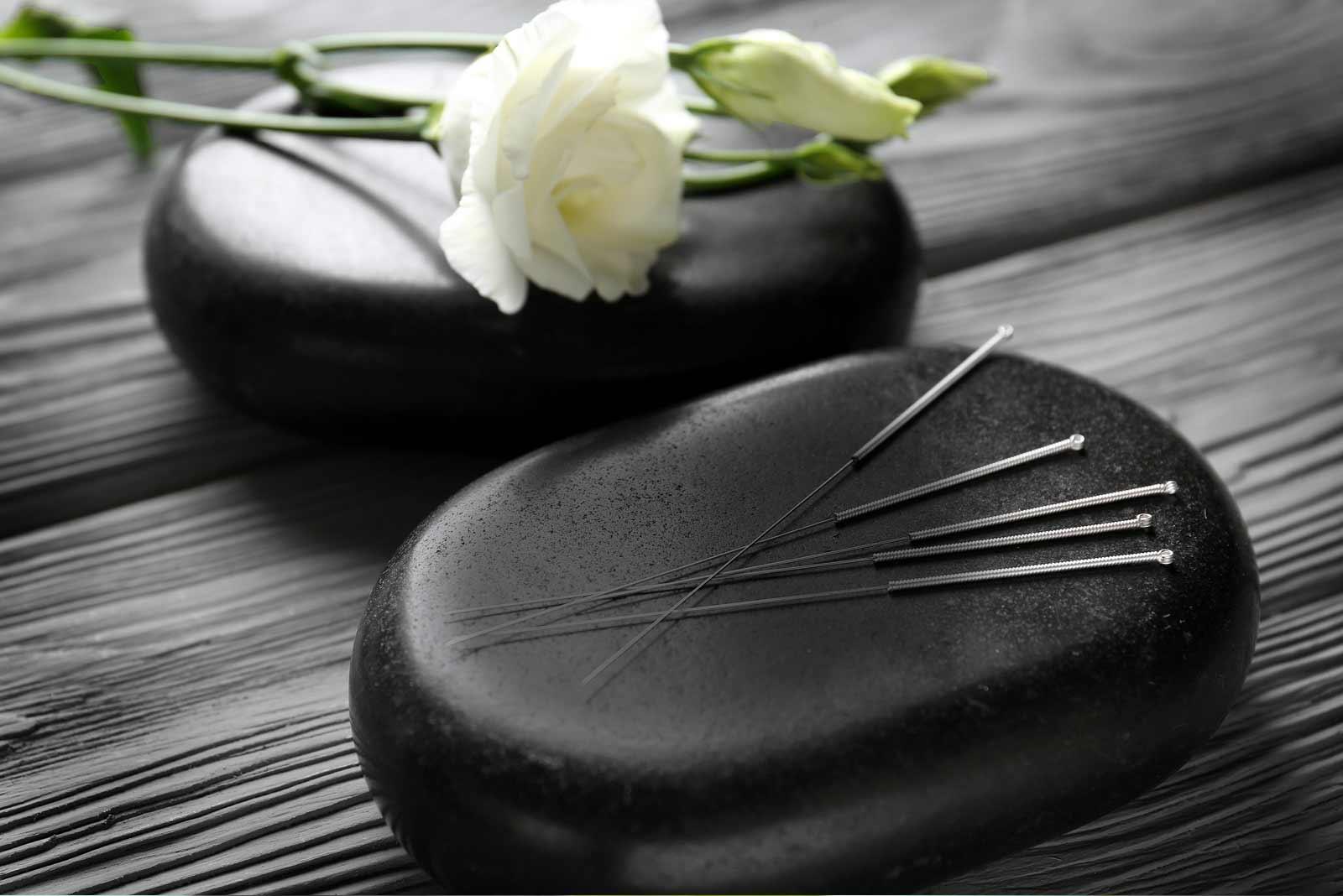 acupuncture-clinique-acupuncture-osteopathie-mirabel